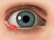 zak in het oog waar oogdruppels moete