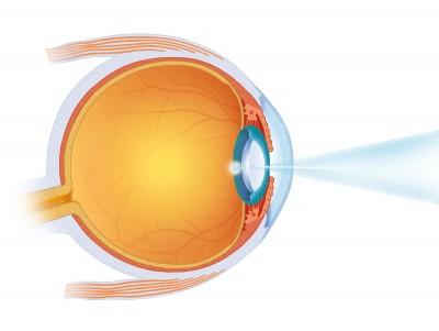 Laseren oog